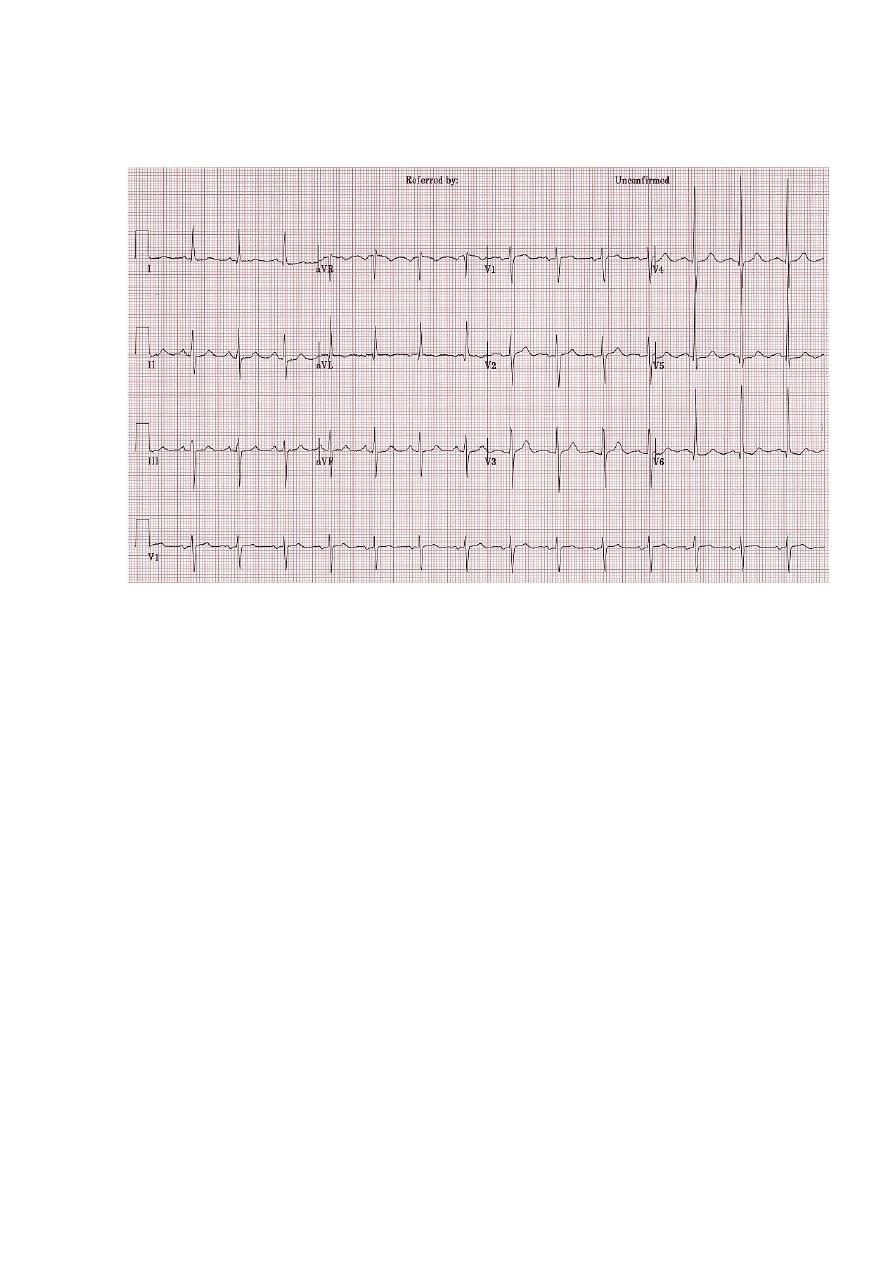 Ситуационные задачи по инфаркту миокарда с решением алгоритм решения задач по химии 11 класс